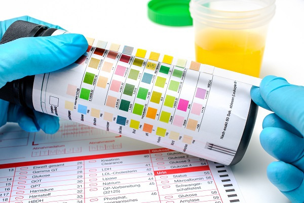 Drug Tests and How Long Drugs Stay in Your System